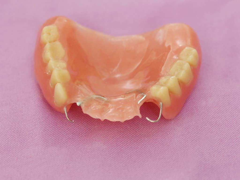 Chirurgie dentaire : quel est le type de rendez-vous ?